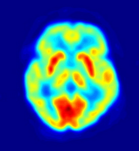 Researchers See Numbers on the Brain